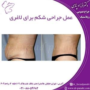 عمل جراحی شکم برای لاغری